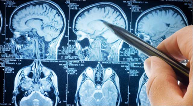 causas-geneticas-epilepsia-infantil