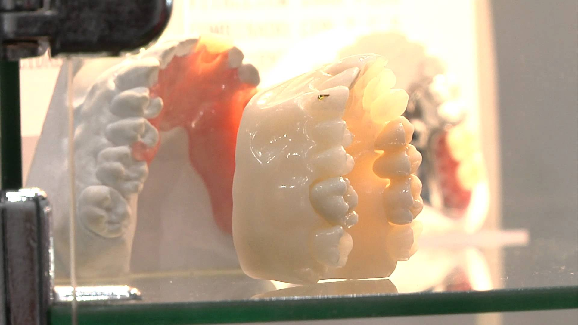 Los odontólogos españoles apuestan por las prótesis dentales 3D al ...
