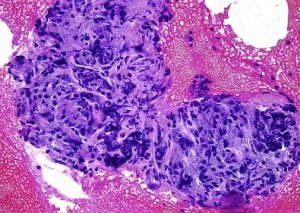 fibrosis pancreas