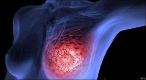 Cancer mama luminal