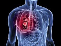 cáncer-pulmón-no-microcítico-EGFR
