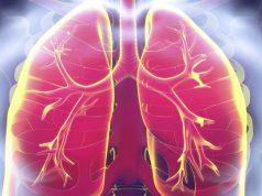 biomarcadores-riesgo-cardiovascular-neumonía