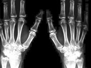 upadacitinib-y-la-Artritis-reumatoide