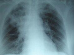 fibrosis-quística-cartera