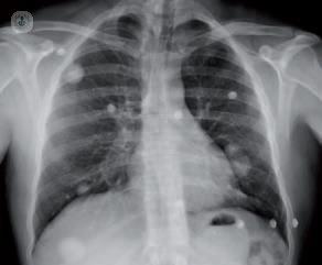 Pulmonar que significa nodulo