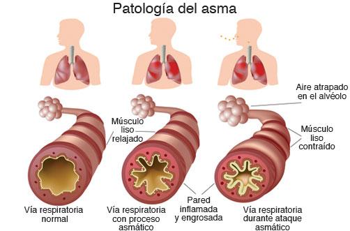 concienciacion-asma