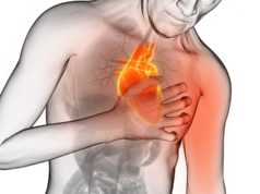 Parada-cardíaca