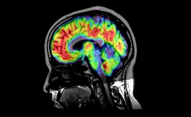 secuelas-neurologicas-psiquiatricas-covid-19