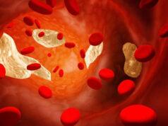 hipercalcemia-vitamina-D