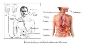 malnutrición-nutrición parenteral-enteral
