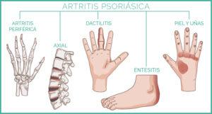 artritis-psoriásica