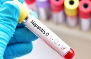 hepatitis-vih-covid-19-cribado
