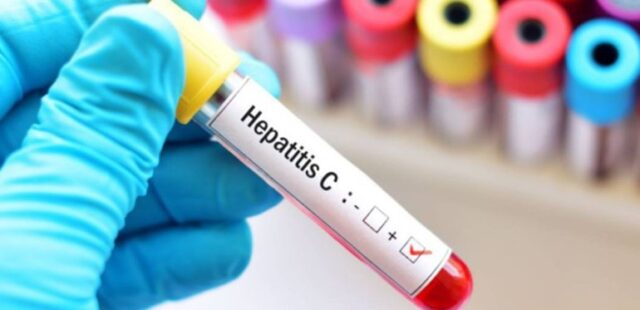 becas-gilead-hepatitis-c