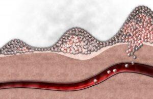 celulas-metastasis-heridas-massague