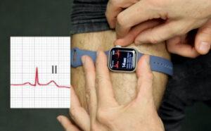 electrocardiogramas-reloj-inteligente