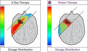 protonterapia-cáncer-infantil