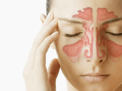 sinusitis-y-rinitis