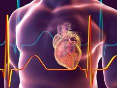 Covid-19-infarto