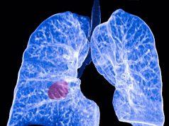 inteligencia-artificial-cáncer-pulmón